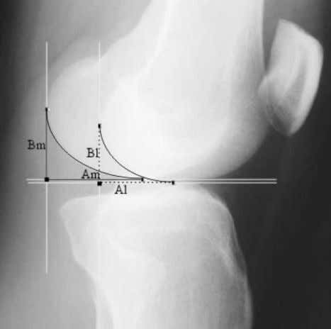 Condyle Shape, Coll. Antropol. 29 (2005) 2: 409–414 Fig. 3. Side view knee X-ray with outlined