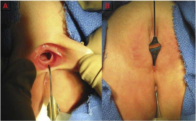 patients had the repair done without a protective colostomy. Fig. 1 A probe is inserted into