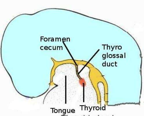 Figure showing development of thyroid ventral to foramen cecum Figure showing migration of thyroid gland