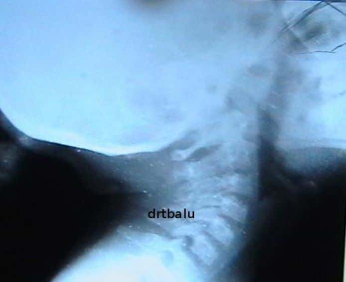 It will also demonstrate the lower extent of the mass. X-ray soft tissue neck lateral view