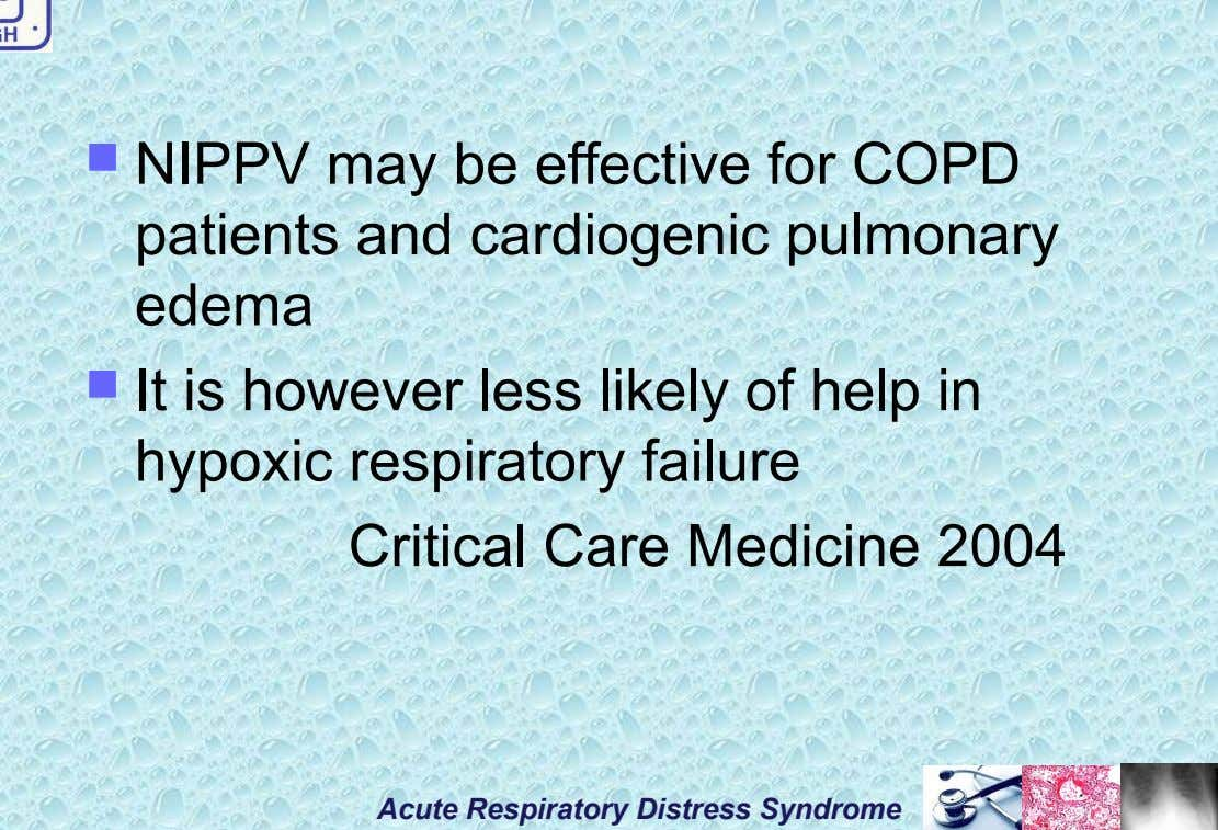  NIPPV may be effective for COPD patients and cardiogenic pulmonary edema  It is however