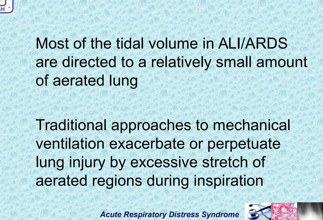 Most of the tidal volume in ALI/ARDS are directed to a relatively small amount of aerated
