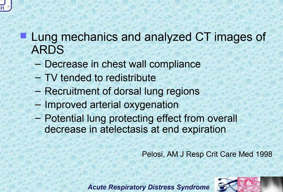  Lung mechanics and analyzed CT images of ARDS – Decrease in chest wall compliance –
