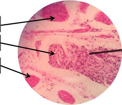 B. LOWER ESOPHAGUS Inner Circular Smooth Muscle Myenteric/ Auerbach's Plexus Outer Longitudinal Smooth Muscle Figure