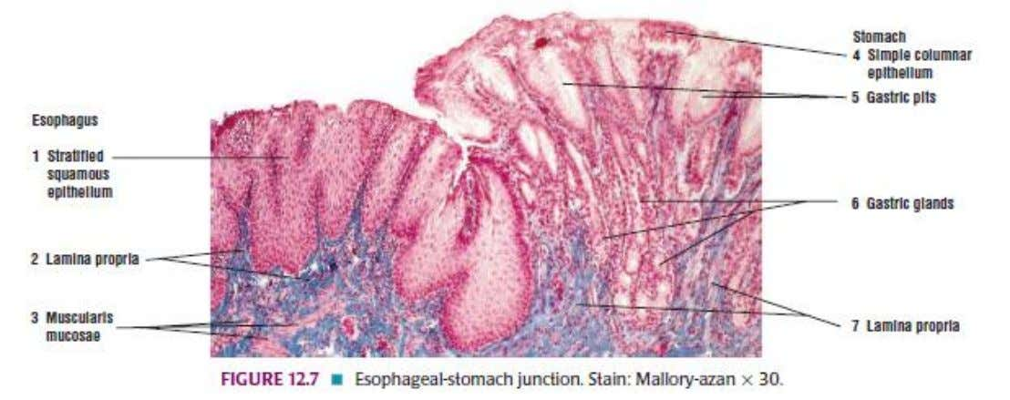 ESOPHAGOGASTRIC JUNCTION Source: DiFiore's Atlas of Histology