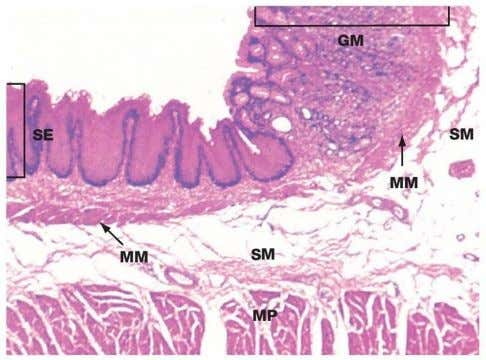 ESOPHAGOGASTRIC JUNCTION Source: Wheater's Functional Histology SE - Stratified Squamous Nonkeratinized Epithelium GM