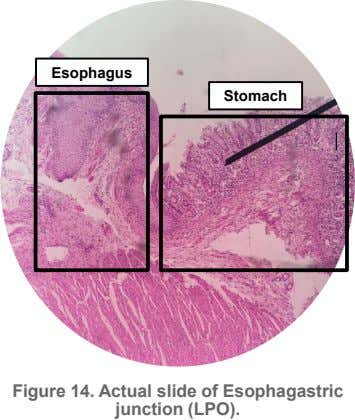 Esophagus Stomach Figure 14. Actual slide of Esophagastric junction (LPO).