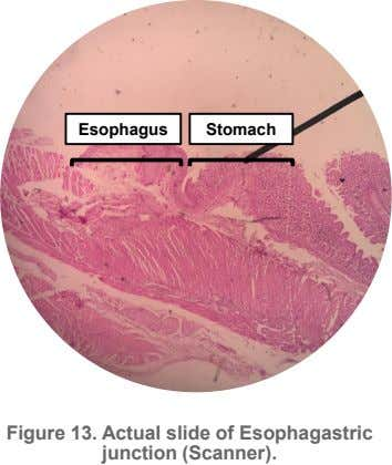 Esophagus Stomach Figure 13. Actual slide of Esophagastric junction (Scanner).