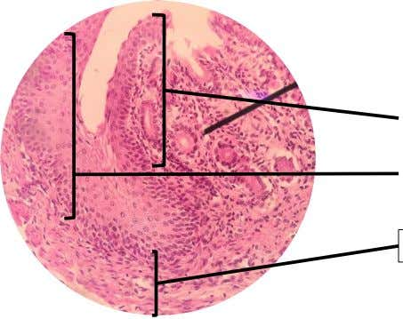 C. ESOPHAGASTRIC JUNCTION Esophagus LE: Stratified squamous non-keratinized epithelium Stomach LE: Simple