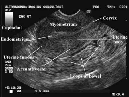 The uterus is a thick, pear-shaped muscular organ located between the two layers of the broad