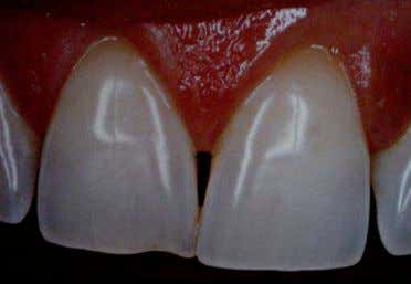 Fig. 2.2 Forma ovoide de la cara y perfil dental ovoide. Fig. 2.3 Forma triangular de