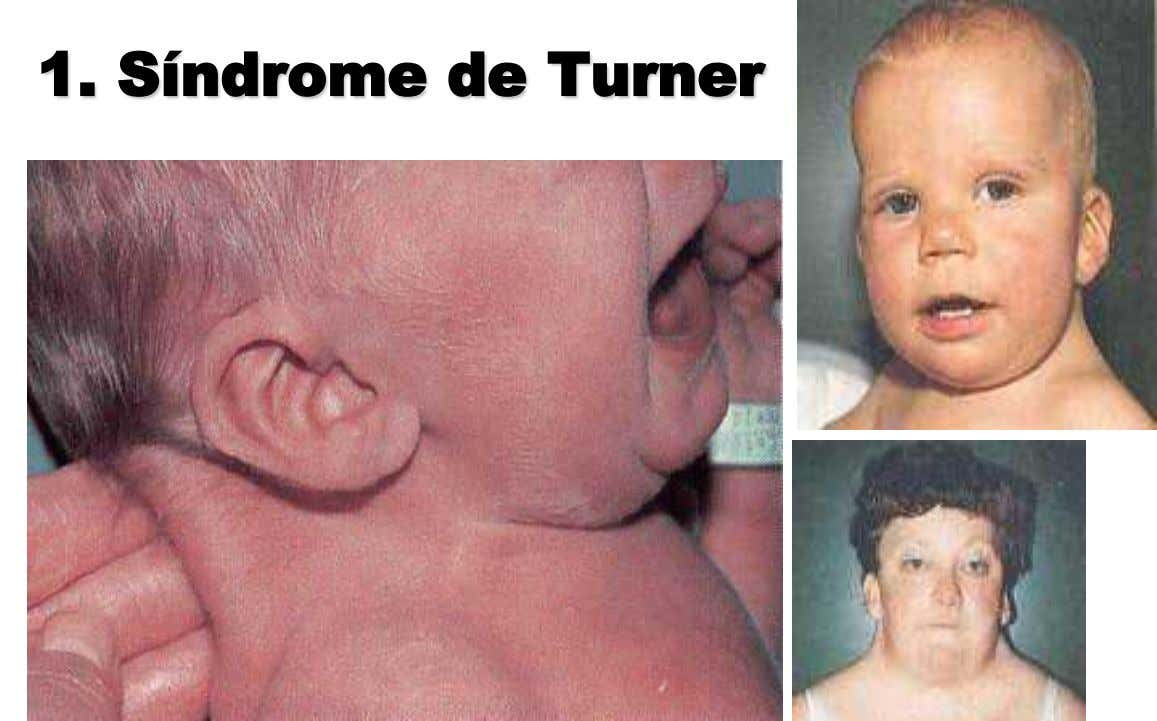 1. Síndrome de Turner