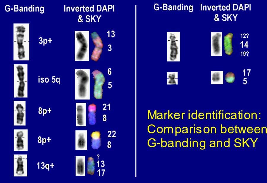 Marker identification: Comparison between G-banding and SKY