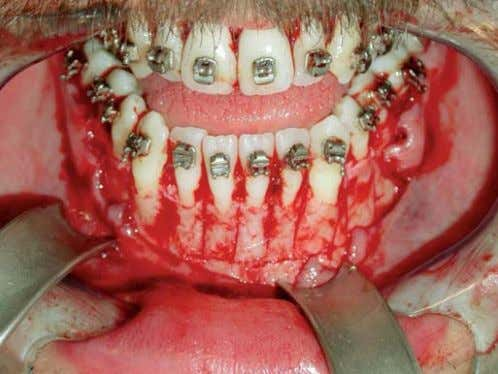 of accelerated tooth movement, or even prolong the phe- Fig. 2 : Aspect peropératoire de l'intervention