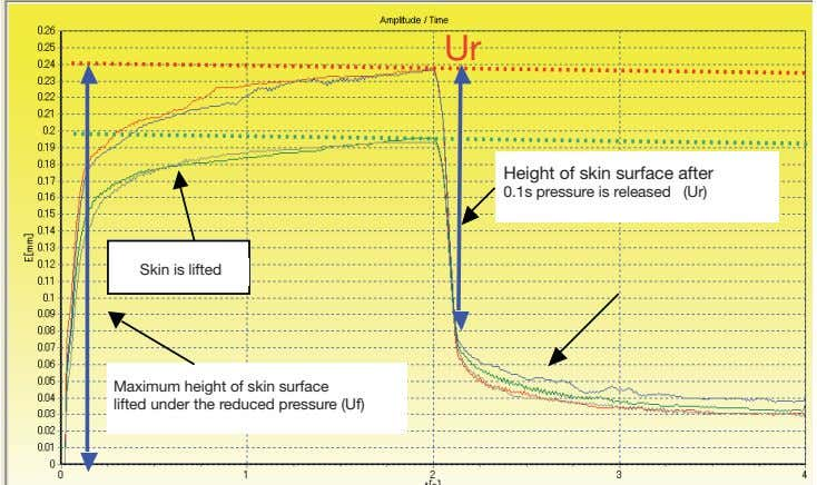 Ur Height of skin surface after Height of skin surface after 0.1s pressure is released
