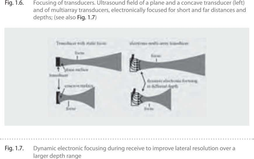 Fig. 1.6. Focusing of transducers. Ultrasound field of a plane and a concave transducer (left) and