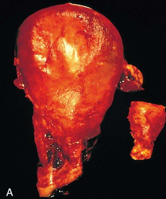 HYPERTROPHY Gross appearance of a normal uterus (right) and a gravid uterus (removed for postpartum bleeding)