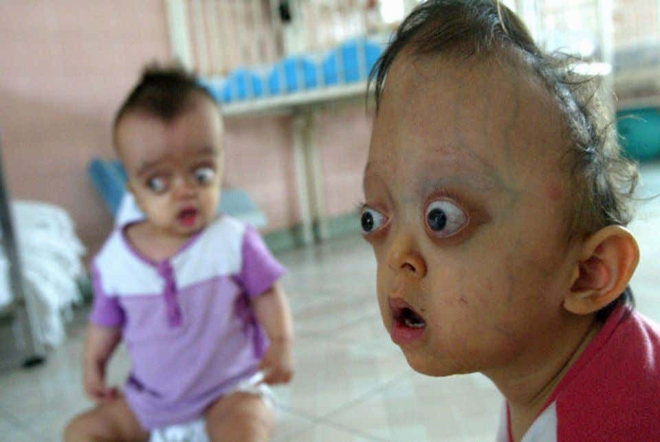 Birth Defects From Agent Orange