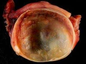 Adnexal masses -Ovarian Cysts Michelle M Fynes MB BCh BAO (Hons) MD (Research) MRCOG DU