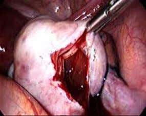 chronic fatigue • dyschezia (pain on defaecation). Laparoscopic cystectomy for ovarian endometriomas is better