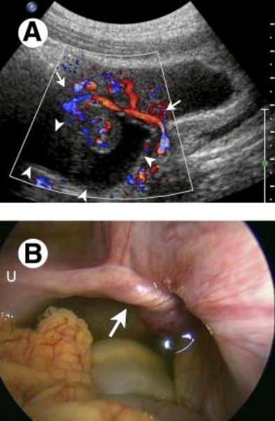 On surgery it proved to be adnexal torsion related to a paraovarian cyst leading to ipsilateral