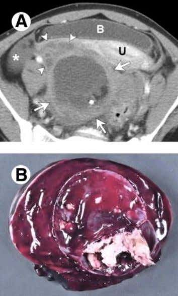 Adnexal Mass Emergencies Ovarian teratoma with torsion. (A) Enhanced axial CT adolescent XX sudden onset