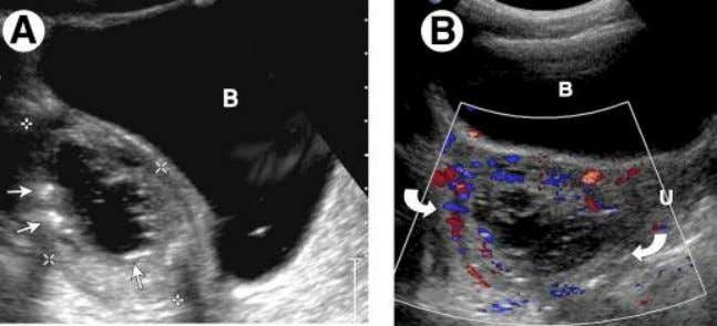 contains few gas foci (arrows). (B) US Transverse thick-walled abscess peripheral hypervascularity. B bladder; U uterus.