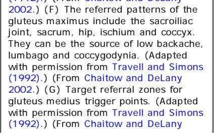 for gluteus medius trigger points. (Adapted with permission from Travell and Simons (1992) .) (From Chaitow