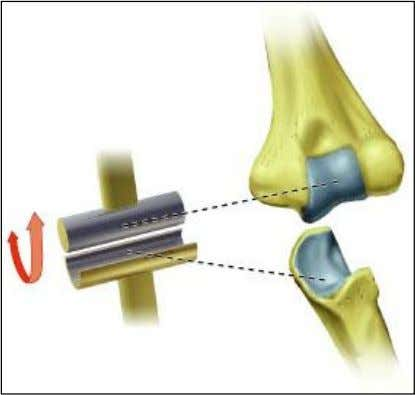 • Plane joints – Articular surfaces are essentially flat – Allow only slipping or gliding movements