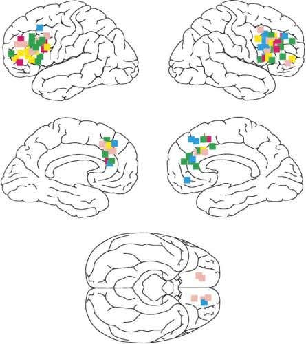 Duncan and Owen (2000), slightly modified, with permission. Figure 5. Frontal Activations under Five Cognitive Demands