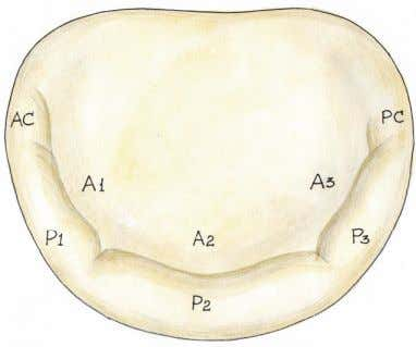 regions of the anterior leaflet A1, A2, and A3. Fig. 1. Photograph of the mitral valve.