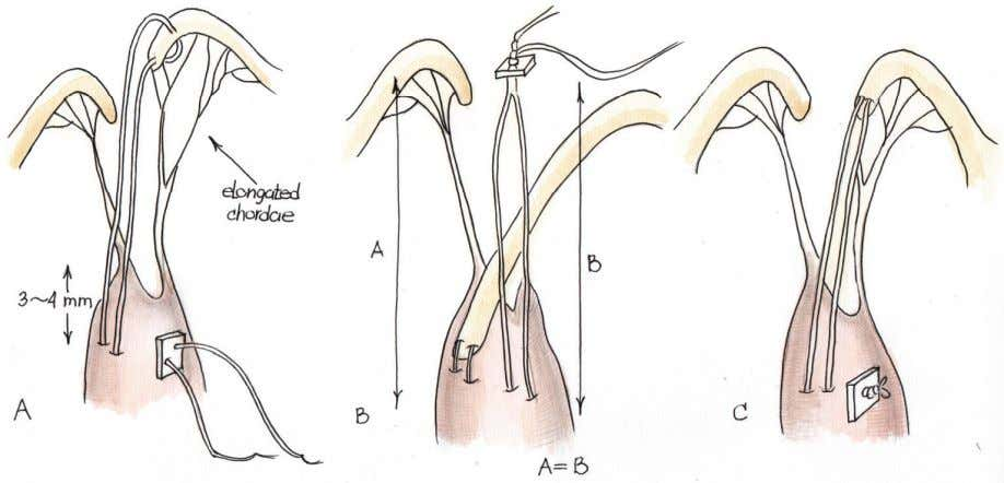 same fashion. A Kay-Reed annuloplasty was added (Figure 6). Fig. 6. Kawahira et al., 1999 used
