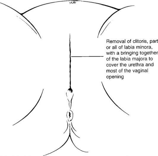 OF PEDIATRICS FIGURE 3 Type 2 female genital mutilation. FIGURE 4 Type 3 female genital mutilation.