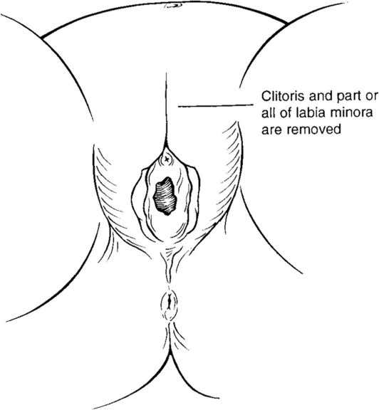 FROM THE AMERICAN ACADEMY OF PEDIATRICS FIGURE 3 Type 2 female genital mutilation. FIGURE 4 Type