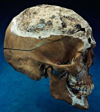 dwelling set on fire to disguise a murder? Skeletal Evidence Male cranium. Image courtesy: Smithsonian Institution