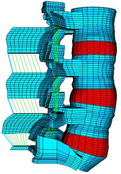 Figure 3.2: Finite element model of the intact L3-S1 spine. Figure 3.3: Mid-sagittal view of