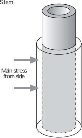 Stem Main stress from side