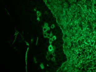 lymphocytic exocytosis. (H&E, magnification 30 × ). Figure 7. Direct immunofluorescence shows IgG deposition