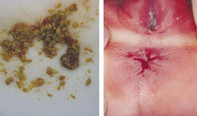 blood; the next most common cause is an anal fissure. Figure 2.95. Normal appearance of the