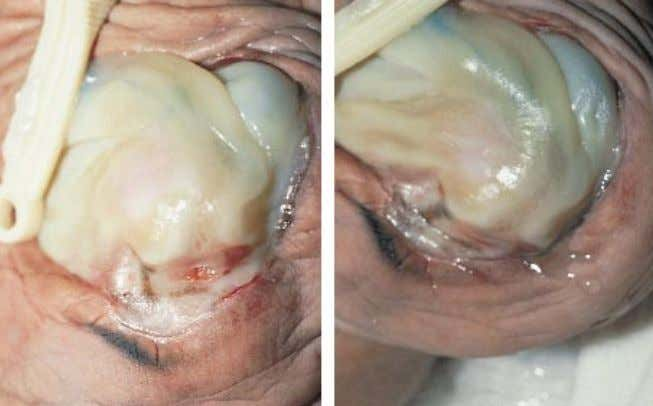 of umbilical cord differentiates this from gastroschisis. Figure 2.141. This infant with absence of the abdom-