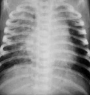 amniotic fluid, or gas- tric contents), chest radiographs can demonstrate patchy diffuse infiltrates. 1.106 1.107 1.108