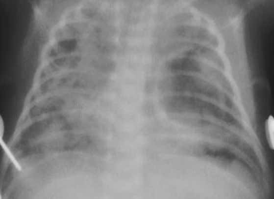 Thorax, Abdomen, Blood, Endocrine, and Metabolic Disorders Figure 1.157. A radiograph of the chest of the