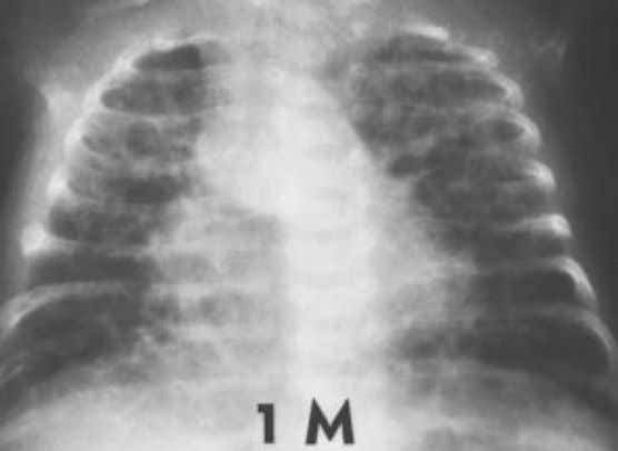 disease, and one-third die of respiratory failure. Figure 1.158. Wilson-Mikity syndrome (pulmonary