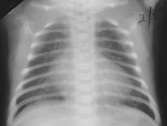 parenchyma because of a PDA and congestive heart failure. Figure 1.170. This is a chest radiograph