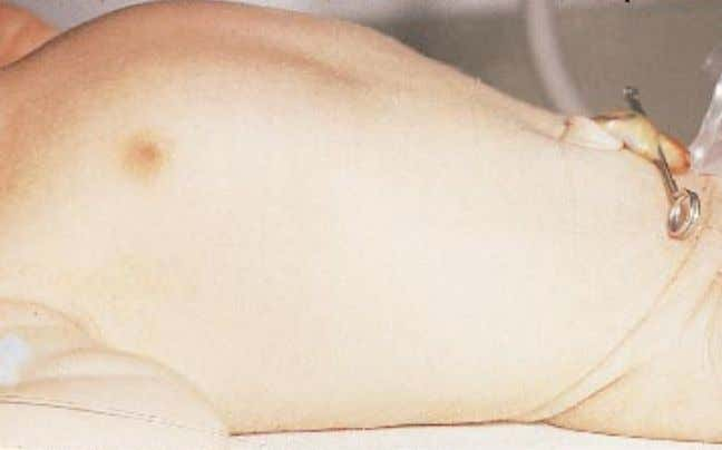 in low-birthweight infants and improves with maturation. Figure 2.14. The abdomen is usually scaphoid at birth