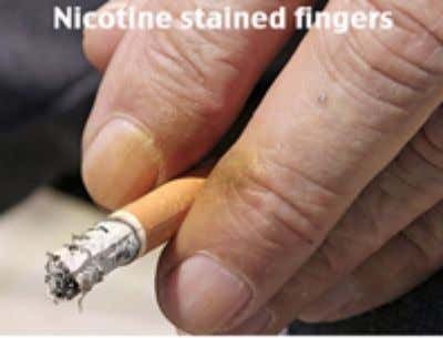 nicotine through smoking can cause chronic heart problems and increases the possibility of heart attacks. In