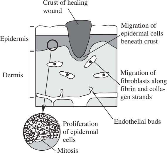 Crust of healing wound Migration of epidermal cells Epidermis beneath crust Dermis Migration of fibroblasts