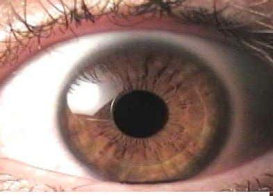 and performance. Known biometric features include: Figure 1: Human Iris with Pupil and biometric features •
