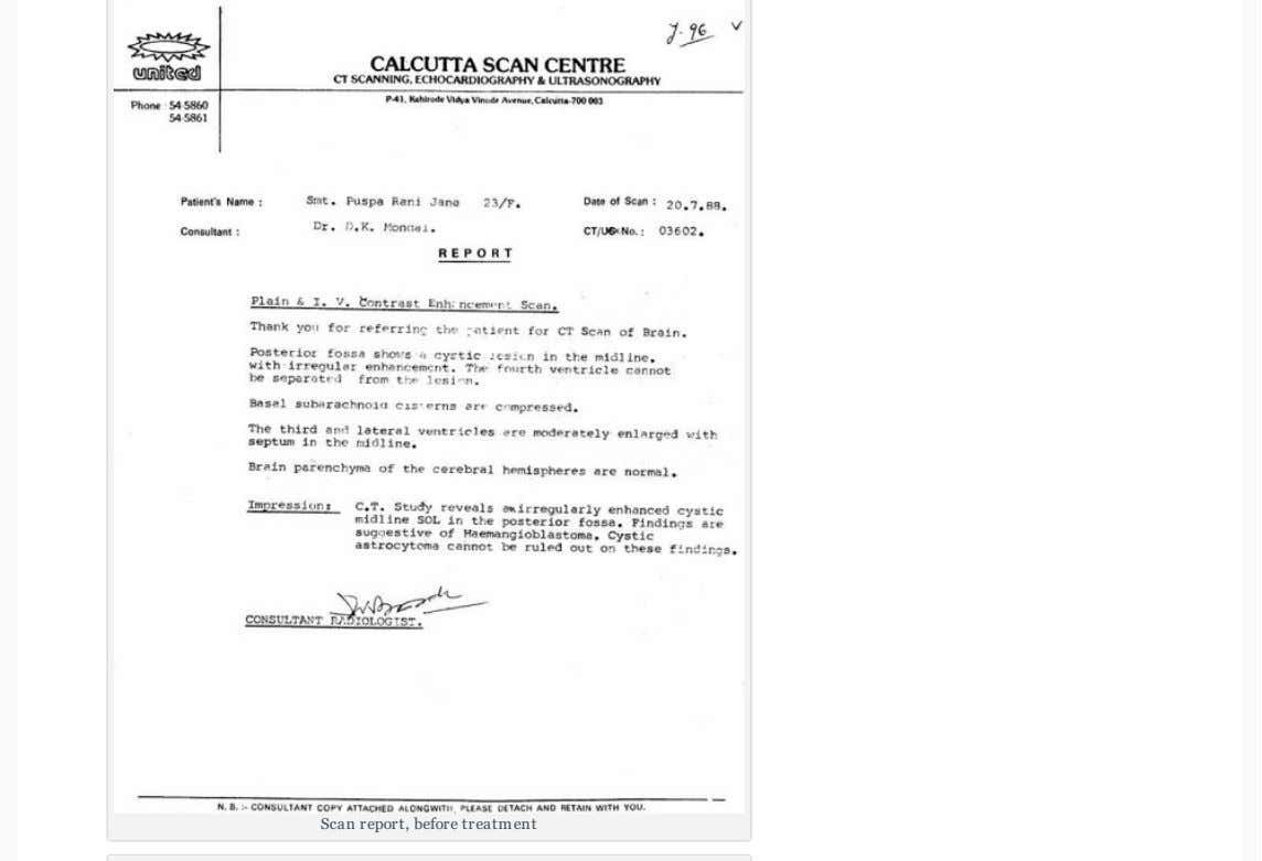 Scan report, before treatment