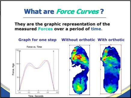 WhatWhat areare ForceForce CurvesCurves ?? They are the graphic representation of the measured Forces over